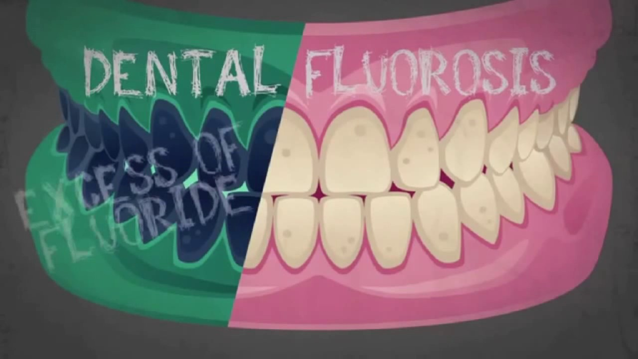 Anonymous Presents - The Truth About Fluoride